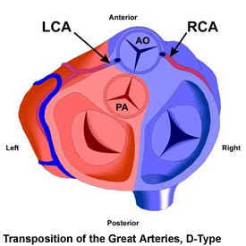 Transposition of the Great Arteries, D-Type
